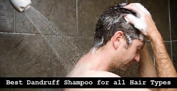 10 Best Dandruff Shampoo for all Hair Types
