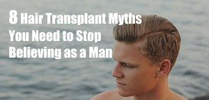 8 Hair Transplant Myths You Need to Stop Believing as a Man