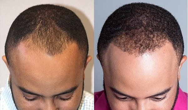 Hair Transplant Recovery