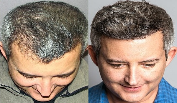 How Successful Is Hair Transplant