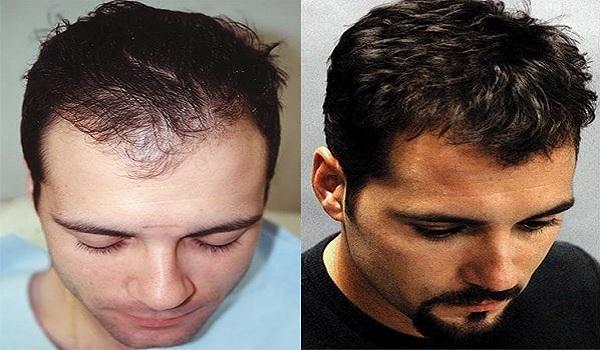 Long Term Outlook of Hair Transplant