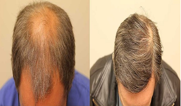 Crown Hair Transplant Success Rate