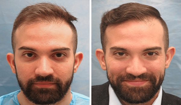 Hair Transplant Results Review New York
