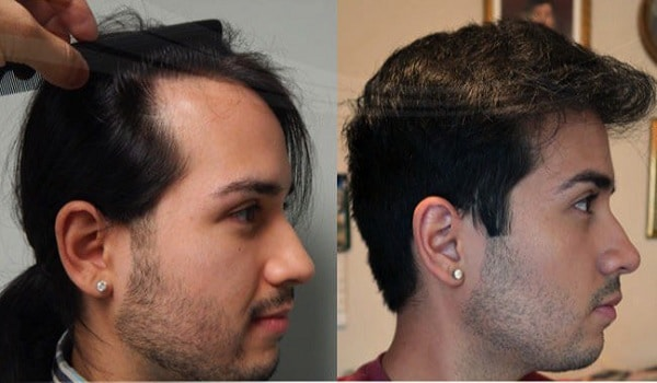 Natural Hair Transplant Results Review
