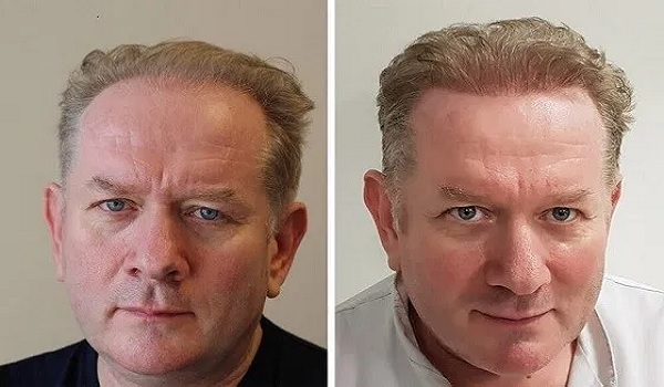 Receding Hairline Hair Transplant NJ
