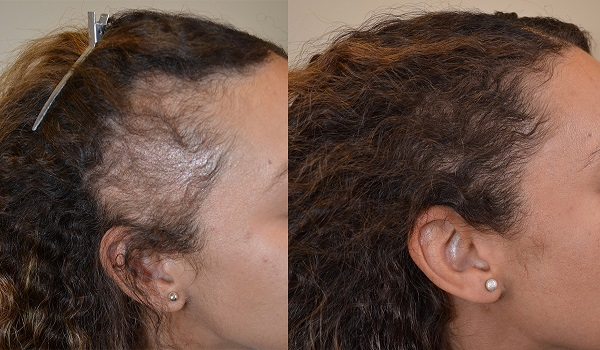Sides Hair Transplant Results