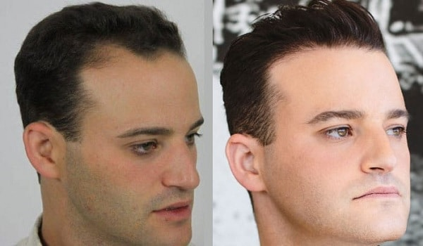 Temple Hair Transplant Cost