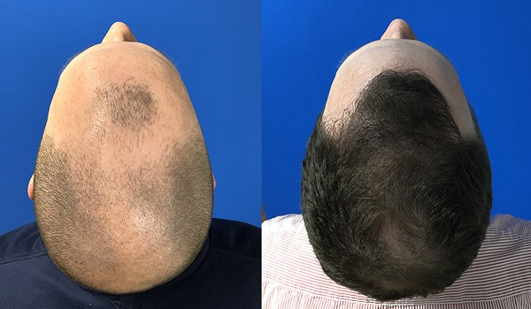 Whole Crown Hair Transplant Permanent