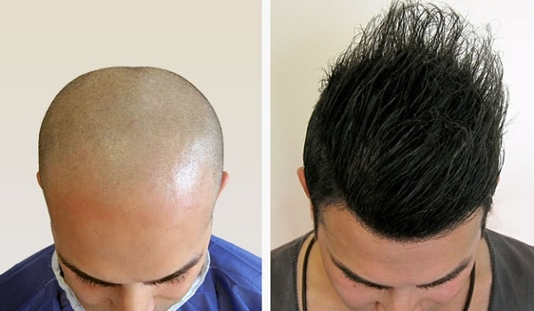 Whole Scalp Hair Transplant Procedure
