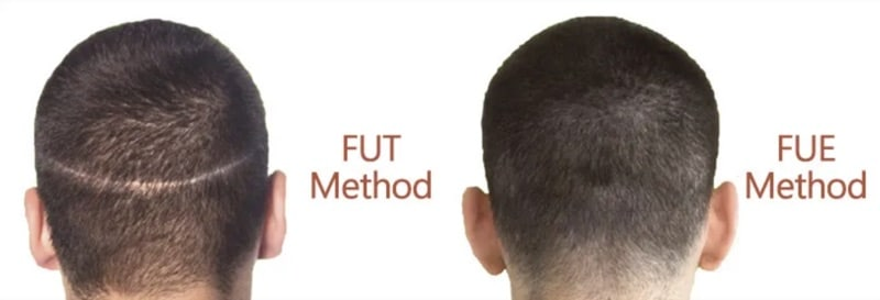 fut method fue method hair transplant